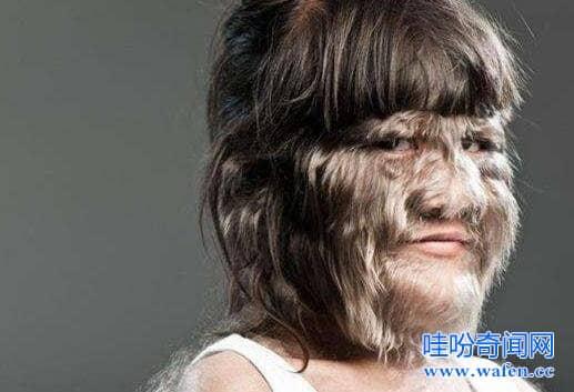 世界体毛最长的人曝光脱毛后身材火辣性感艾米丽苏珊